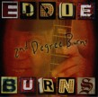 Burns Eddie-2nd Degree Burns